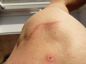 Tratamiento cicatrices Benalterapia